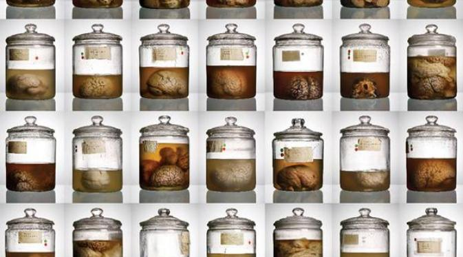 Misteri Hilangnya Puluhan Otak Manusia
